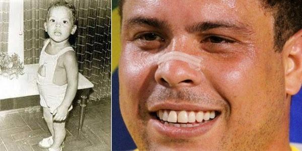 Filho de peixe, peixinho é. Ronaldo Fenômeno menininho também era muito parecido com os seus descendentes, Ronald e Alex
