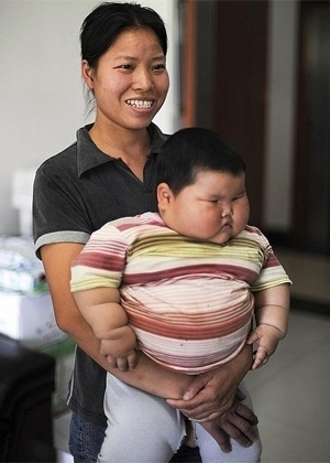 Um beb&#234; chin&#234;s de 1 ano e meio de idade tem aproximadamente 20 kg, o dobro do recomendado para sua idade, e corre o risco de parar de andar por n&#227;o suportar o peso do pr&#243;prio corpo,