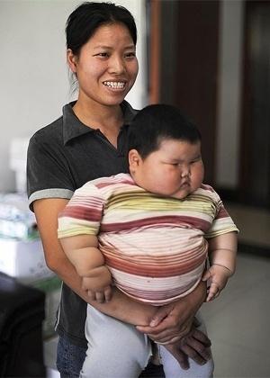 Um bebê chinês de 1 ano e meio de idade tem aproximadamente 20 kg, o dobro do recomendado para sua idade, e corre o risco de parar de andar por não suportar o peso do próprio corpo,