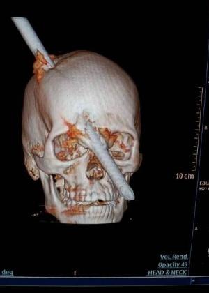 Imagem mostra como o vergalhão atravessou o crânio de Eduardo Leite