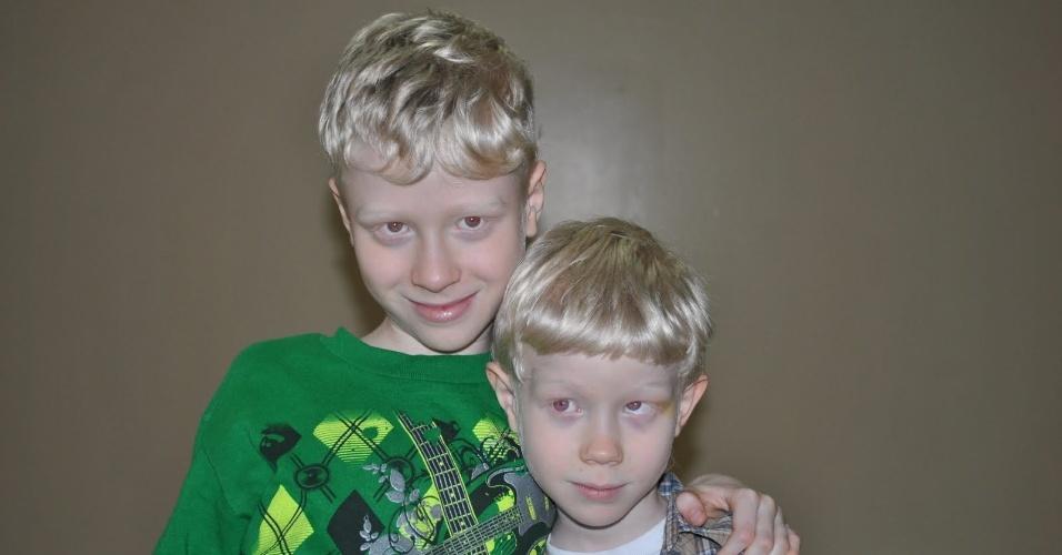 """Síndrome de Hermansky-Pudlak - Trata-se de um conflito genético, caracterizado por albinismo e problemas oculares, além do aumento do tempo de sangramento - provocado por alterações nas plaquetas. Predominante em Porto Rico e nos alpes suíços, a doença foi descoberta inicialmente na Tchecoslováquia, em 1959, por Hermansky e Pudlak. Estudos estimam que o mal atinge 1 a cada 8.000 porto-riquenhos. Geralmente, as vítimas da enfermidade apresentam características como pele e olhos claros. Não existe cura para esta síndrome, mas os tratamentos podem minimizar os sintomas instigados pelo transtorno. A imagem acima foi divulgada pelo blog """"Heather Kirkwood"""", que aborda histórias de pacientes que sofrem com a doença"""