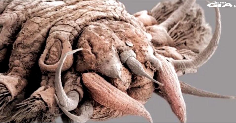Larvas de parasitas em um estômago