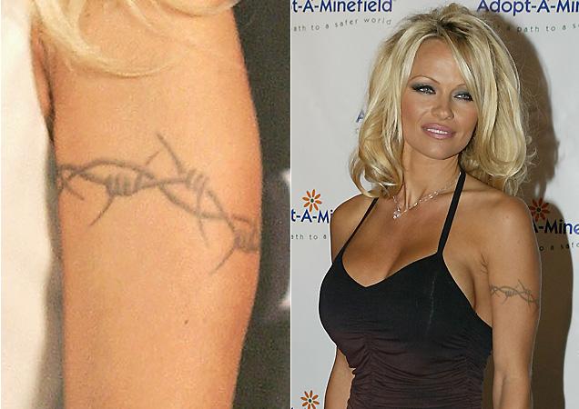 A atriz Pamela Anderson dividiu a agulha com seu marido na época, o baterista Tommy Lee, quando fez essa tatuagem de arame farpado no braço, e disse que pegou hepatite do ex
