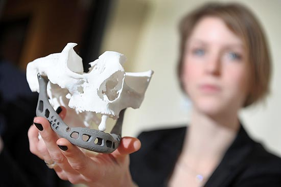 Quinta-feira (2/1) - Uma holandesa, que sofria de uma séria infecção na mandíbula, voltou a falar depois de ter recebido com êxito um implante fabricado graças a uma nova tecnologia 3D. O aparelho, exibido nesta quinta-feira à imprensa na Universidade Biomédica Hasselt, em Diepenbeek (Bélgica), é colocado sob a estrutura dentária e pesa pouco, cerca de 107 gramas