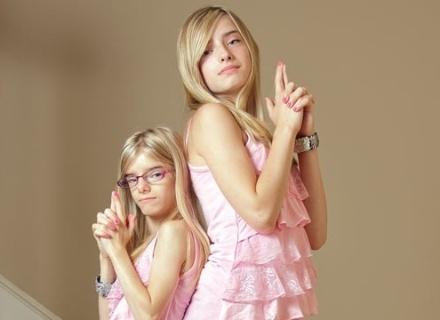 Gêmeas diferentes incrível (9/2/2012)