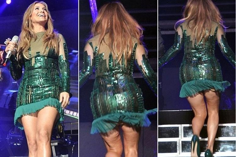 Jennifer Lopez celulite