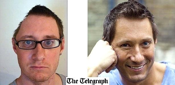 Ao cair de uma altura de oito metros, o britânico Tim Barter, de 32 anos, estraçalhou parte do crânio e da órbita de um dos olhos (29/2/12)
