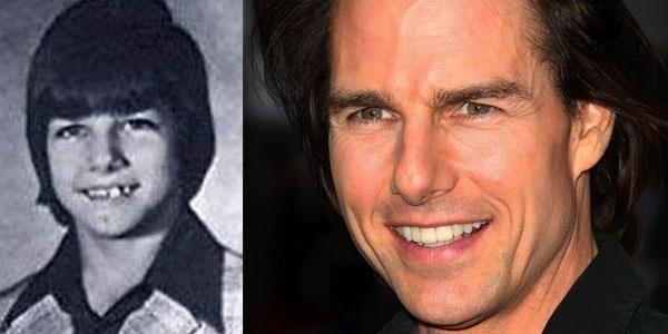 """Ainda bem que o ator Tom Cruise cuidou de sua imagem! Veja como eram desalinhados os dentes do homem considerado """"sex simbol"""""""