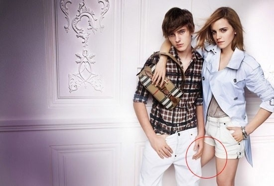 Em anúncio da marca Burberry, Emma Watson acabou com uma perna deformada