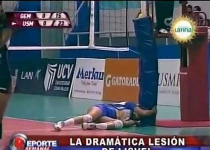 Segunda-feira (18.fev.2013) - A jogadora de vôlei Lizbeth Eve sofreu uma fratura exposta na tíbia e na fíbula durante uma partida pelo Campeonato Peruano e passou por uma cirurgia. Uma nova operação será realizada nos próximos dias para estabilizar o local