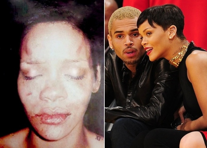 Fev.2009 - Site TMZ divulga foto da cantora Rihanna após ser agredida por Chris Brown. No dia 25 de agosto do mesmo ano, o cantor foi sentenciado a cinco anos em liberdade condicional, e também a prestar trabalho comunitário durante 180 dias na Virgínia (EUA), seu estado natal. Chris Brown foi condenado por ter agredido Rihanna na véspera da cerimônia da 51ª edição do Grammy, realizada em 8 de fevereiro de 2009 em Los Angeles