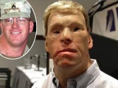 Outro militar que teve o rosto queimado no Afeganistão foi Todd Nelson. Mesmo com 43 cirurgias plásticas, ele não conseguiu recuperar a aparência que tinha antes de fazer parte da invasão americana