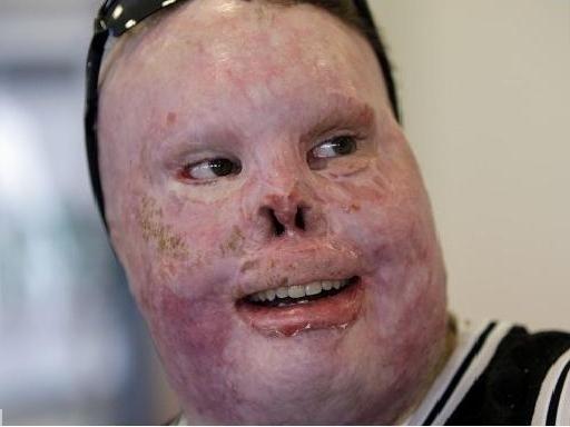Durante o conflito, porém, Richard Yarosh teve a face queimada e dilacerada. Ele passou por dezenas de cirurgias para tentar remodelar o rosto