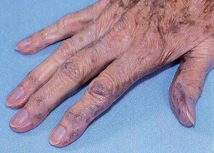 Alcaptonúria - Também conhecida como ocronose, esta doença atinge uma pessoa em cada 1.000.000 de nascimentos, sem predominância étnica. Causada por acúmulo de ácido em diversas partes do corpo, os sintomas da enfermidade podem desencadear problemas no coração, pedras nos rins e complicações na próstata. A doença também provoca dores nas articulações, manchas azuladas nos olhos e na pele. O mal se manifesta, inicialmente, ainda infância, através da urina escura. Porém os principais sintomas só aparecem por volta dos 40 anos. A ciência ainda não descobriu medicamentos eficazes para combatê-la, mas a medicina orienta a tratamentos paliativos, como fisioterapia, para aliviar as tensões