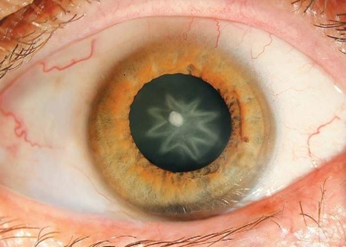 """Catarata traumática - A imagem acima, que lembra aquelas lentes de contato desenhadas, foi detectada por pesquisadores da Áustria em um homem de 55 anos. A """"catarata estrelada"""", como foi denominada pelos estudiosos, teria sido causada após o paciente sofrer um trauma - no caso, um soco - na região do globo ocular. Exame realizado pela Universidade Médica de Innsbruck constatou que a mancha no cristalino causou a opacificação da visão - o paciente em questão teve problemas, mas a recuperou após procedimento cirúrgico. Segundo os médicos, casos de catarata traumática podem ser solucionados com cirurgia, caso a lesão perturbe o eixo da visão"""