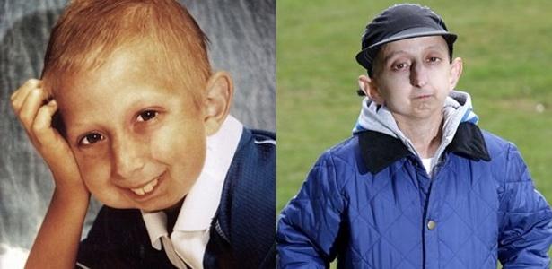 O britânico Dean Andrews, 20, é portador de progeria, também conhecida como doença do envelhecimento precoce