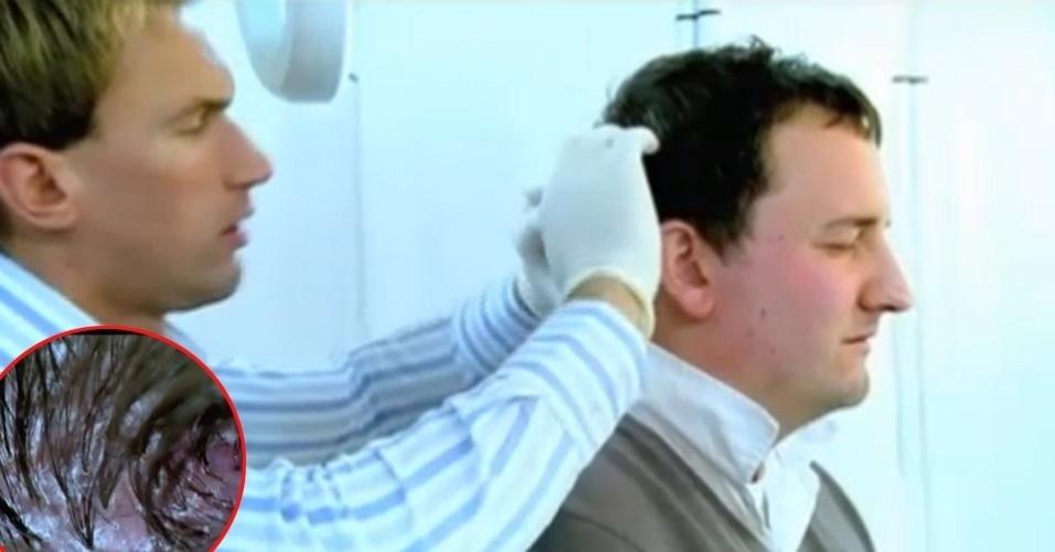 """Foliculite - Inflamação de um ou mais folículos pilosos, como se fosse um tipo estranho de acne, que provoca pústulas e caroços na pele, causando dores, incômodo e constrangimento. A doença pode se manifestar em regiões onde cresça cabelo, como couro cabeludo (destaque) e barba, por exemplo. Causada por infecções fúngicas ou bacterianas, é necessário recorrer a orientação médica, exames microbiológicos e tratamentos orais e tópicos. Na imagem, um homem procura um médico do programa """"Complexados"""" (Discovery Channel), que explica detalhes da doença"""